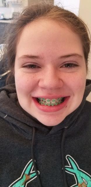 Ali new braces